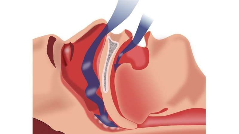 Medical associations create united front to reduce barriers to noninvasive ventilation